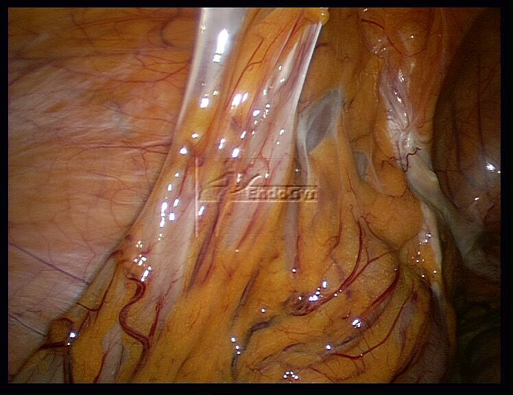 Diagnosis for adhesions