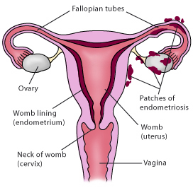 Was bedeutet Endometriose ?